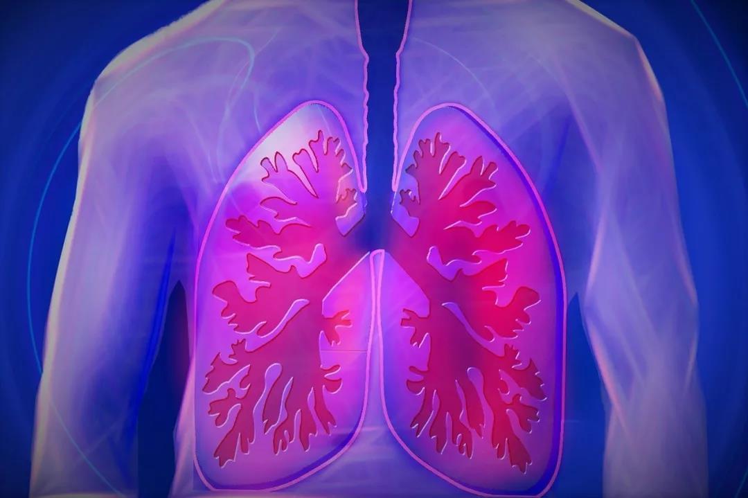 肺癌研究新助力!大连医科大学首次提出应用微流控与微机电集成技术平台