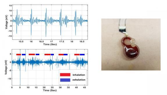 可穿戴电子设备可进行连续的心脏、呼吸监测