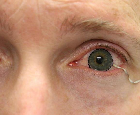新的隐形眼镜技术可用于诊断和监测医疗状况 即将进入临床试验