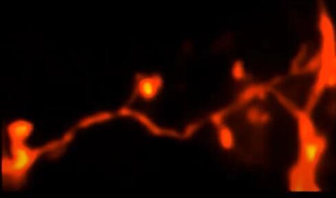 超清显微镜不止拍出小鼠大脑3D超清图像,还能观察几天内的脑部变化