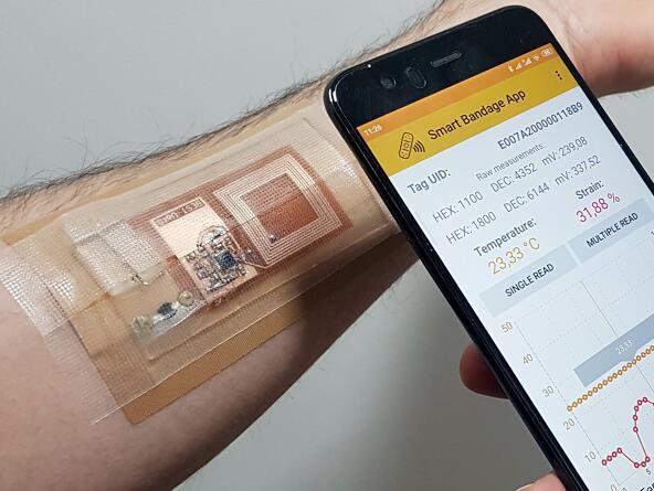 新型智能绷带不仅可以监测伤口情况还可以加快开放性伤口愈合