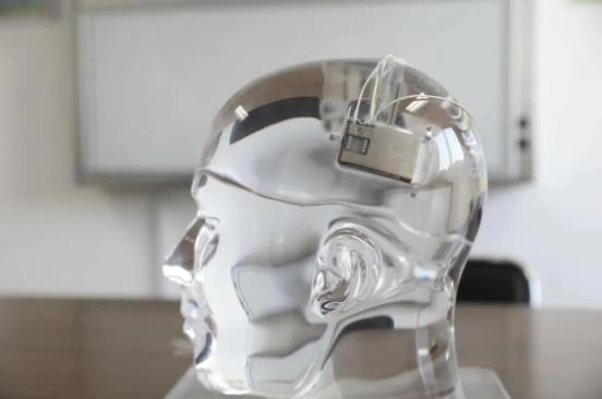 中国首例!我国脑机接口临床转化研究在癫痫诊治领域取得重要突破