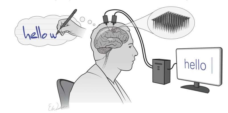 新型脑机接口将脑力笔迹转化为屏幕上的文字
