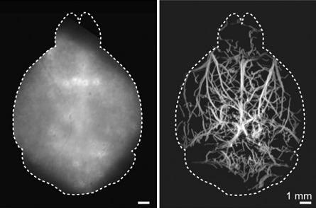 研究人员开发无创荧光显微技术 能为大脑深度成像