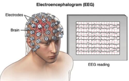 腦機接口迎來全新突破,已有三大方面的應用
