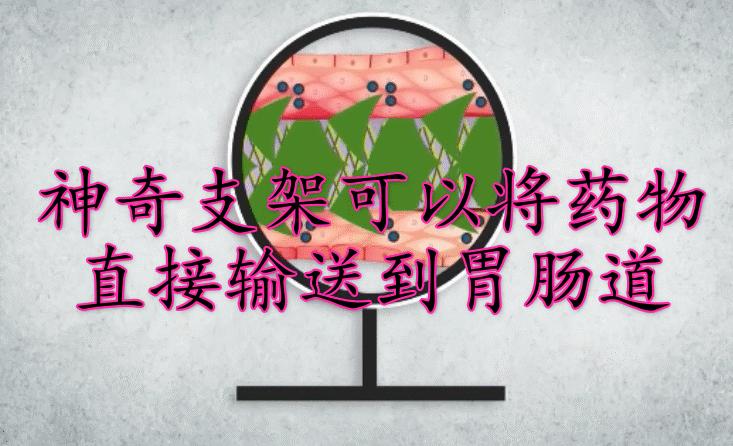 新研究!受日本紙藝術啟發,神奇支架可以將藥物直接輸送到胃腸道