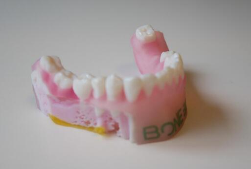 3D打印可以做出以假亂真的義眼,具有真實的透光度和色彩