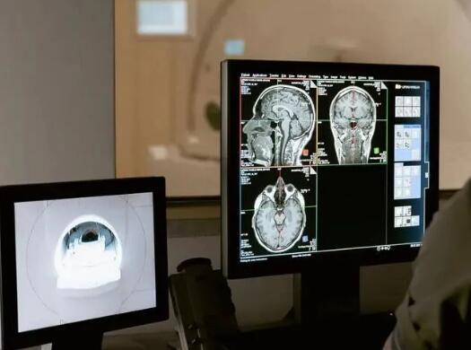 """AI医学影像发展正当时,盘点全球医学影像五大巨头的""""金刚钻"""""""