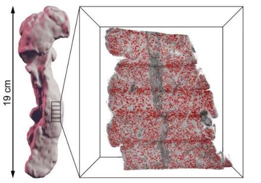 比灰尘颗粒还小的精度!新方法可以创建人体器官的高分辨率 3D 图像