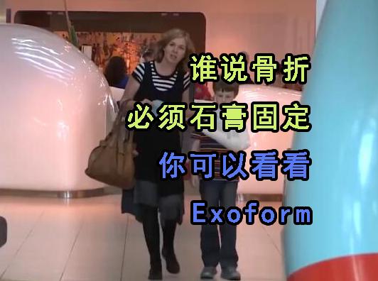 誰說骨折只能石膏固定,更靈活的固定方式Exoform