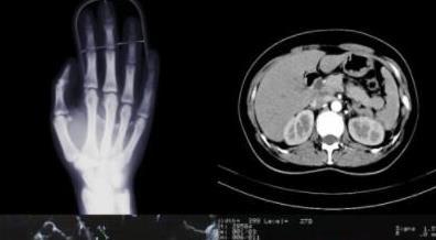 CT 成像技術的組成、原理、應用和前世今生的故事